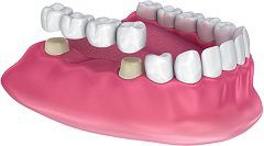 Dental Bridges Pros And Cons