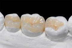 Cemented To The Existing Natural Tooth