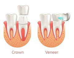 Differences Between Dental Crowns and Veneers