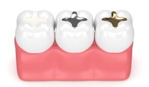 Amalgam Fillings vs. Composite Fillings