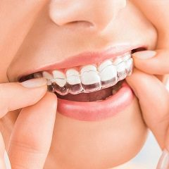 Invisalign Benefits on Correcting Improper Bites