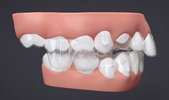The Benefits of Invisalign for Correcting an Open Bite