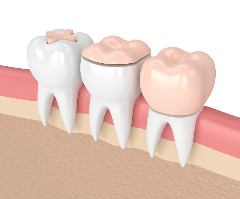 Dental Inlays and Onlays – What is the Difference?