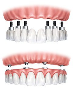 All-On-Four Compared to Dentures