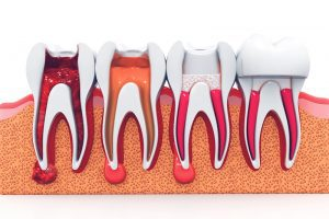 Myths About Getting Root Canals