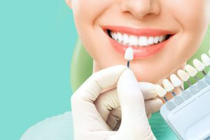Teeth Whitening and Professional Cleaning