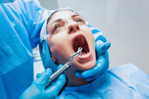 Teeth Extraction: Is it Preventable?